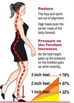 Pressure-on-the-forefoot
